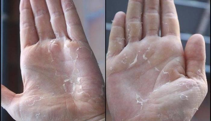 Шелушение кожи на локтях у мужчин