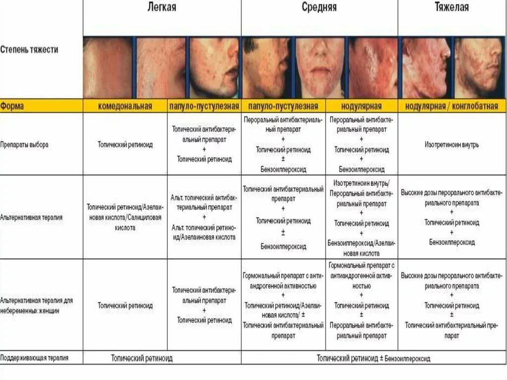 Акне у новорожденных. признаки, как выглядит, фото на лице, голове, груди, спине. как отличить от аллергии, чем лечить, мази, народные средства, уход за кожей ребенка