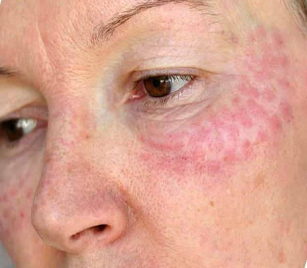 По каким симптомам можно определить аллергию на гиалуроновую кислоту