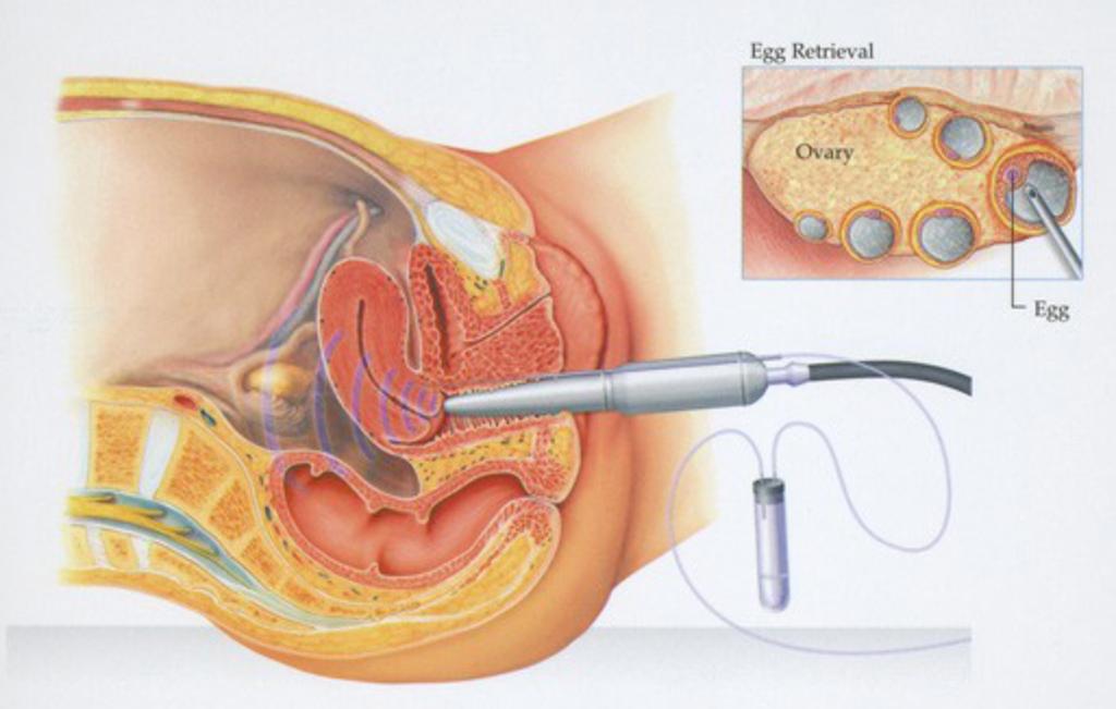 Пункция кисты яичника последствия