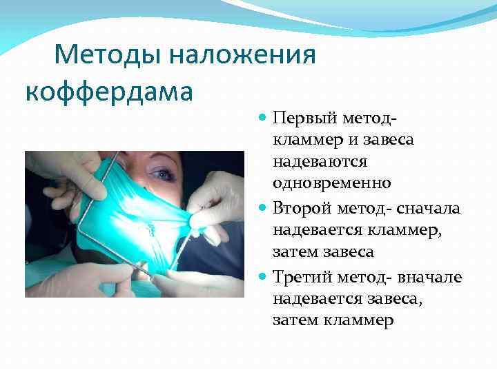 Использование коффердама в стоматологии: наложение, жидкий вариант, особенности применения