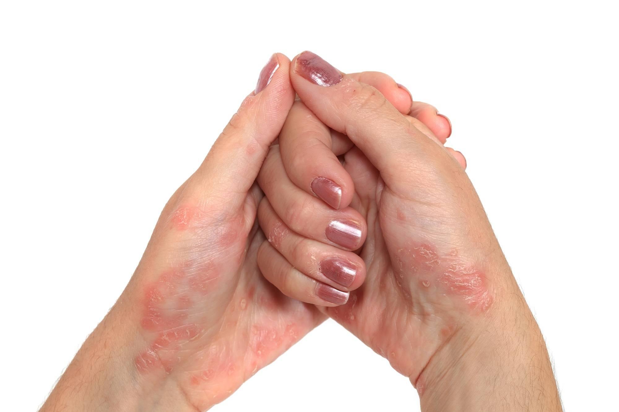 Почему шелушится кожа рук и локтей. что делать