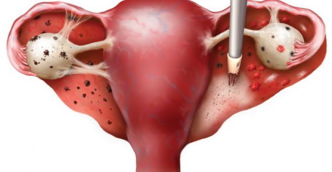 Эндометриоз несет страшные последствия: как выявить и вылечить болезнь