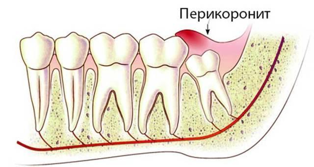 После удаления зуба остался осколок в десне. почему это произошло и что делать
