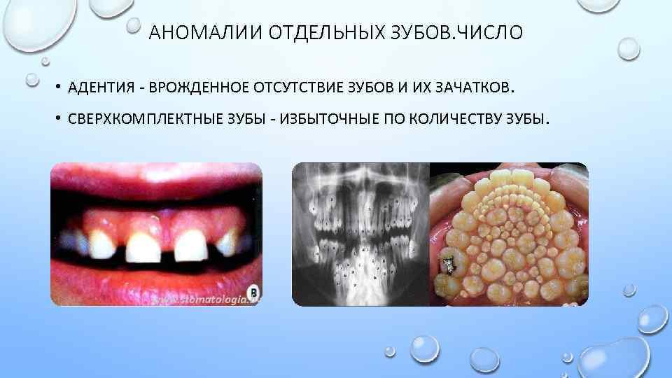 Аномальные зубы у человека. почему возникает гипердонтия и как этого избежать? ретинированные сверхкомплектные зубы