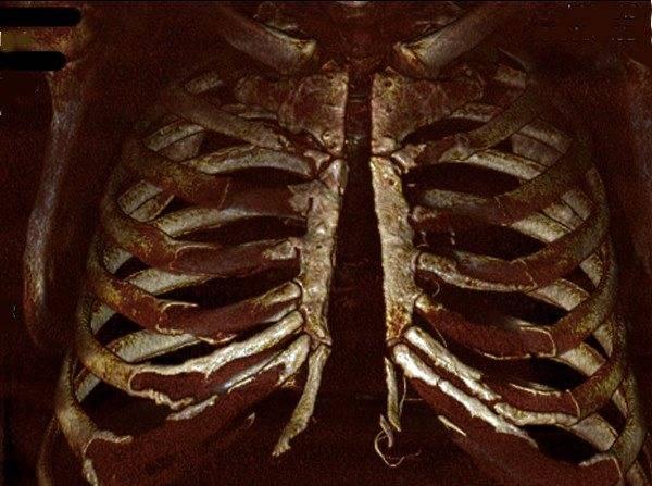 Чем скрепляют грудную клетку после операции на сердце