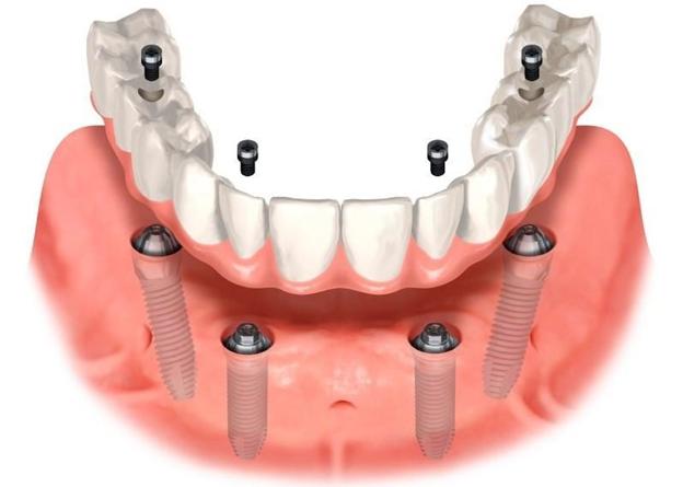 Съемное и несъемное протезирование зубов на имплантах – все за и против!