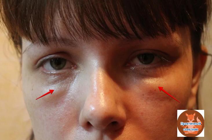 Причины отечности и синяков под глазами