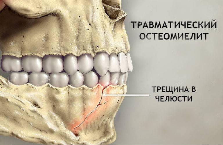 Остеопороз челюсти: особенности симптоматики и лечения