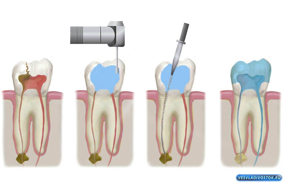 Эндодонтическое лечение зуба, это микрооперация в корневых каналах