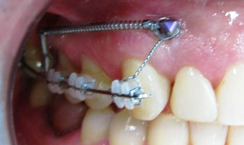 Можно ли ставить брекеты если нет нескольких зубов