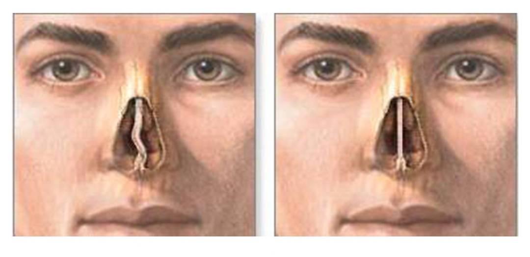 Искривление перегородки носа: чем опасно, лечение «с» и «без» операции