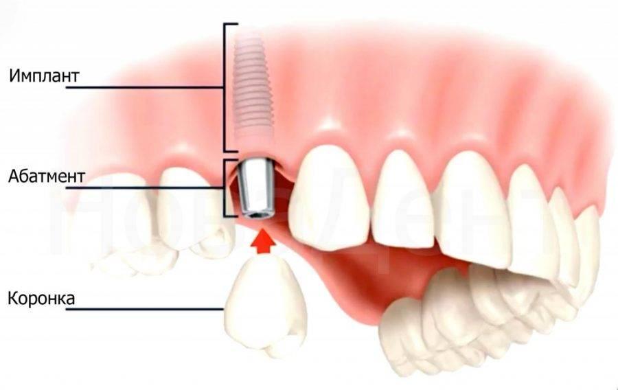 Все о боли во время и после имплантации зубов