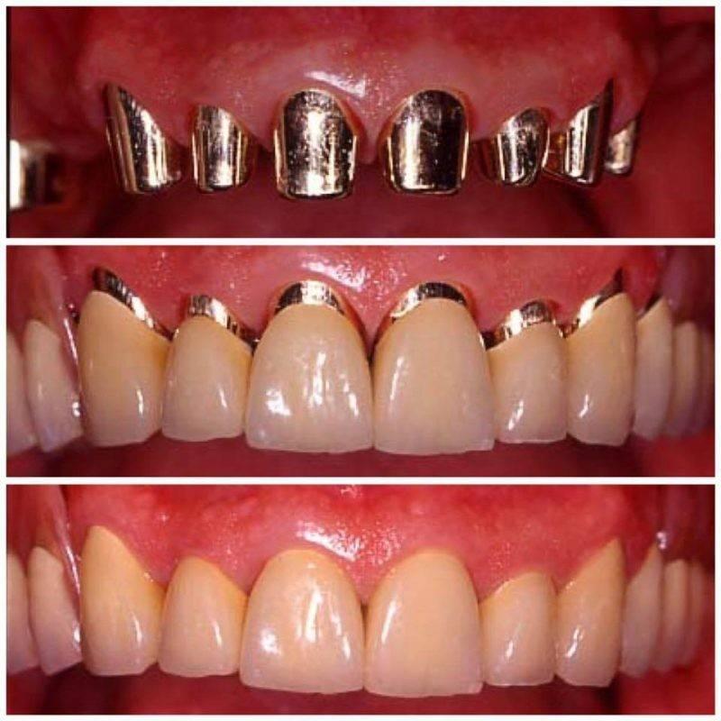 Слепок зубов для брекетов