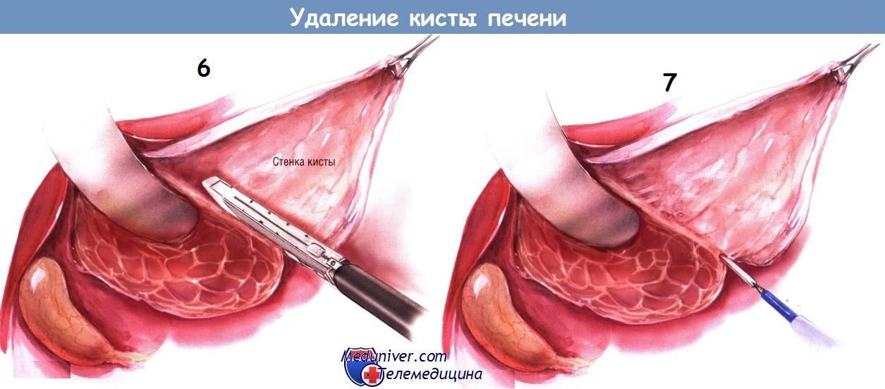 Бартолинова киста — диагностика, лечение и современные методики операции