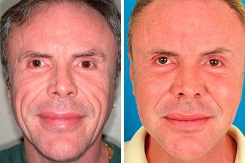 Справится с проблемными зонами лица – легко: преимущества миостимуляции в косметологии