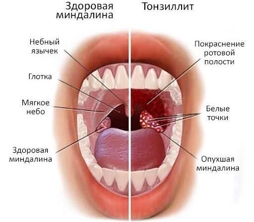 Лечение прыщей в горле