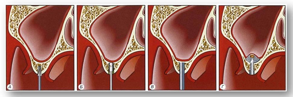 Операция синус лифтинга по наращиванию костной массы