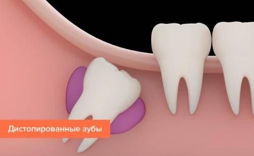 Заболевания десен, зубов у детей и взрослых — описание, симптомы, лечение