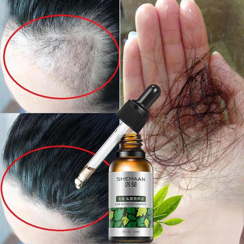 Мезотерапия головы: уколы красоты для густоты и роста волос