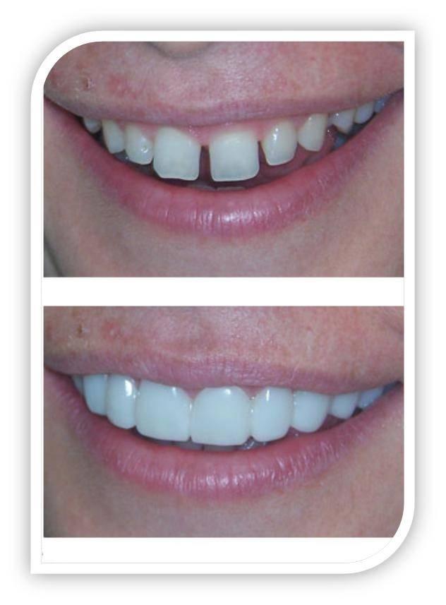 Диастема (щель между зубами)