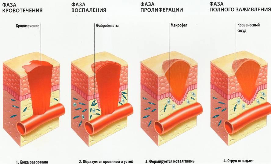 Средства от шрамов после ожогов