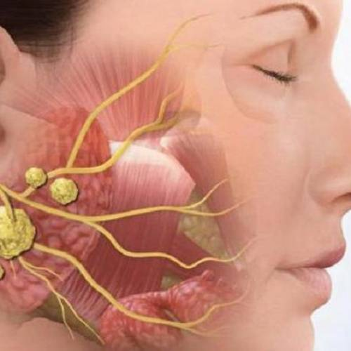 Симптомы и лечение камня слюнных желез – когда нужна операция?