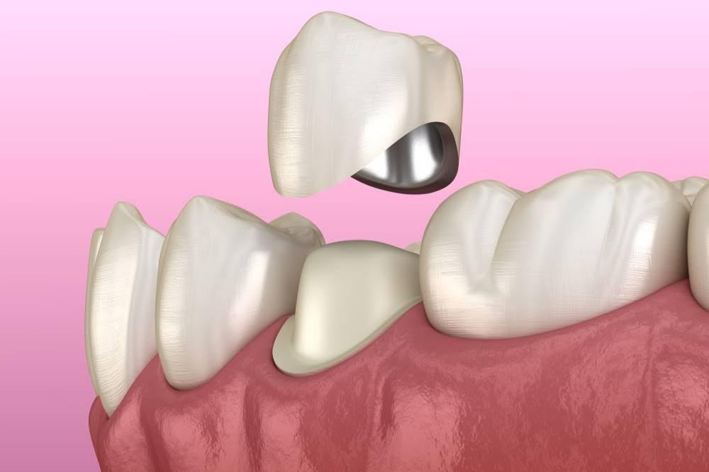 Какие бывают зубные протезы