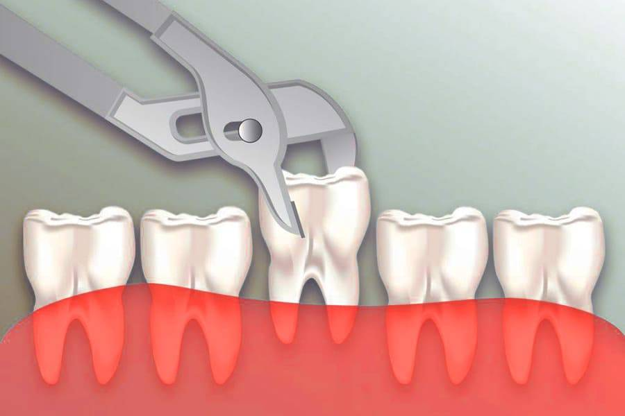 Почему гноится зуб после удаления и как лечить, чтобы не возникло осложнений
