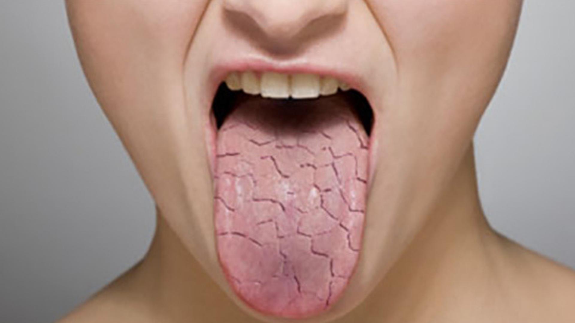 Сухость во рту ночью — причины и устранение