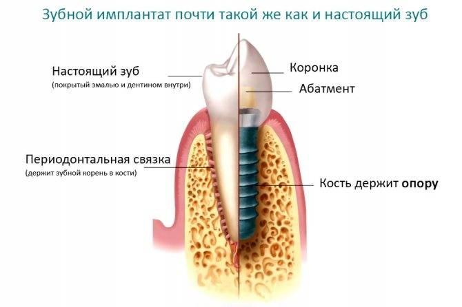 Дентальная имплантация зубов: методы, этапы и реабилитация