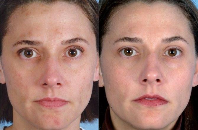 Лазерная шлифовка лица — что это такое, и какого ждать результата?