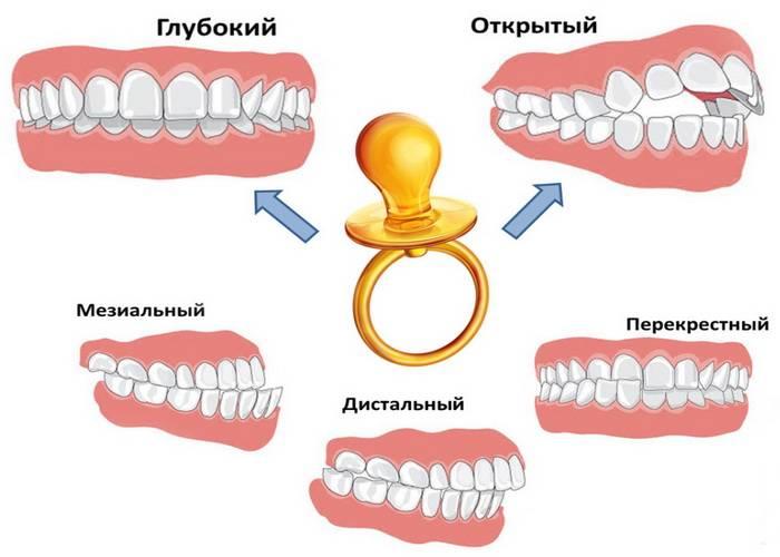 Определение правильного и неправильного прикуса: фото идеального, физиологического и патологического расположения зубов