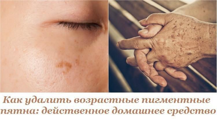 Методы избавления от старческих пигментных пятен на лице