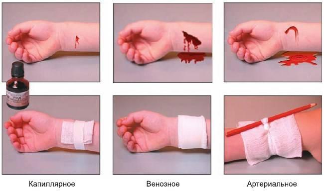 Из носа сильно течет кровь. почему не останавливается кровь из носа и что делать при носовом кровотечении