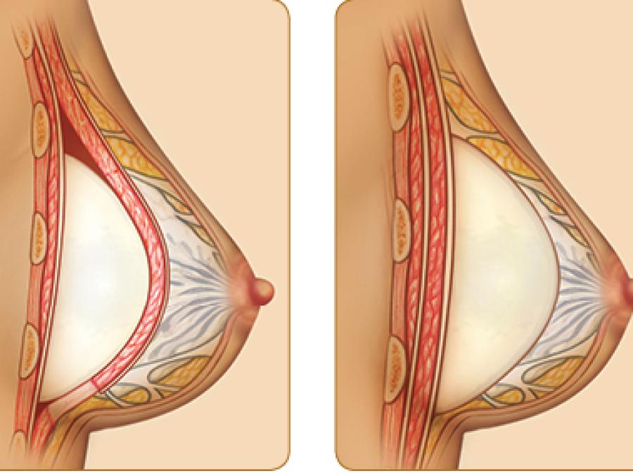 Эффективность липофилинга грудных желез и рекомендации после операции