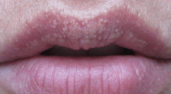 Бледные губы: возможные причины и способы коррекции с помощью натуральных средств