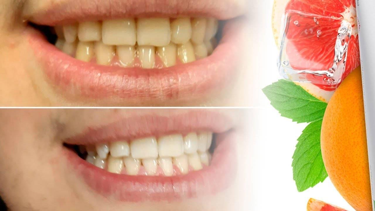 Какие продукты отбеливают зубы: топ 15 лучших для белоснежной улыбки