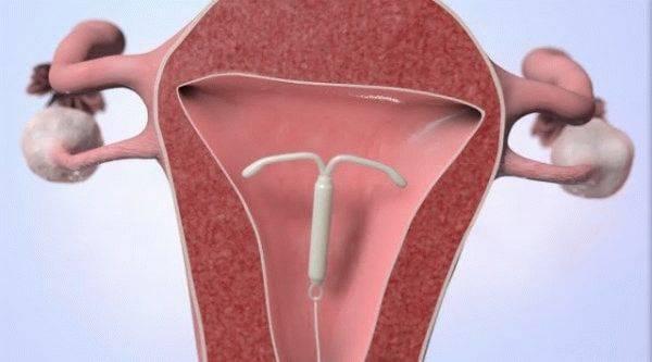 На какой день менструального цикла выполняется установка спирали