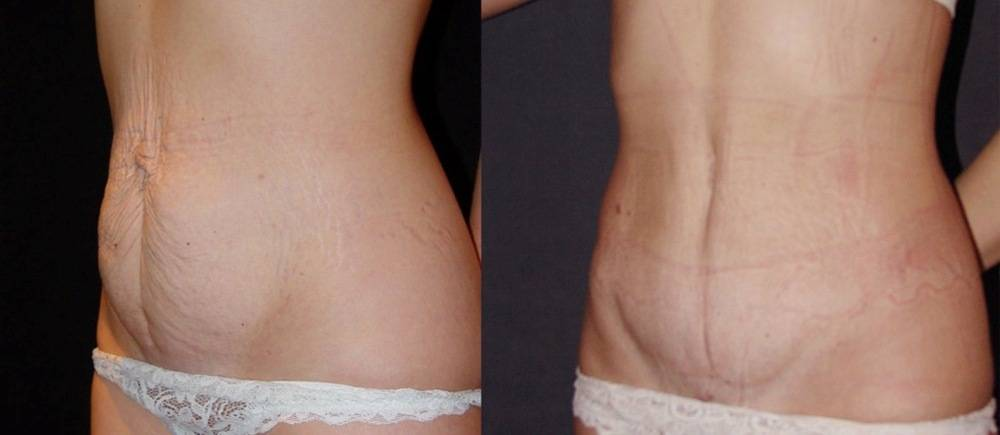 Абдоминопластика: 43 фото до и после коррекции формы живота