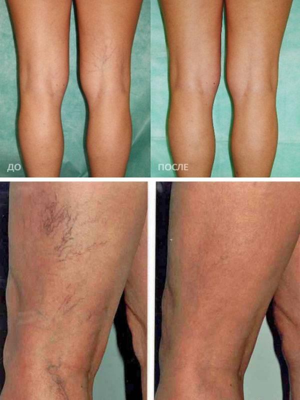 Безопасен ли массаж ног при варикозе, какие могут быть противопоказания?
