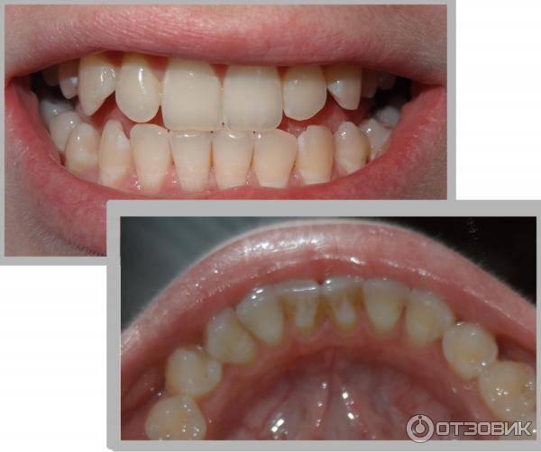 Обязательно ли нужно проводить отбеливание зубов после снятия брекетов
