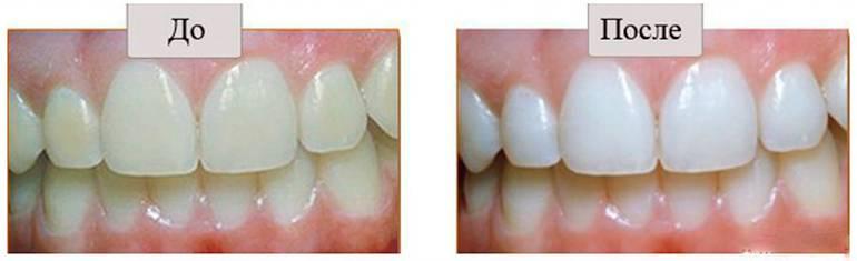 Можно ли пить алкоголь после чистки и отбеливания зубов?