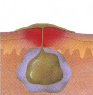 Язвочки на половых губах