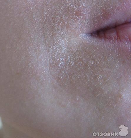 Красные шелушащиеся пятна на лице: причины, симптомы и лечение