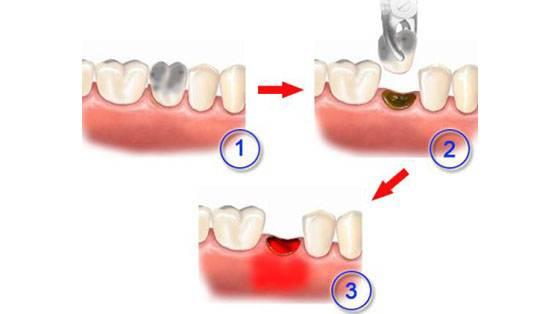 Что делать если после удаления зуба остался осколок
