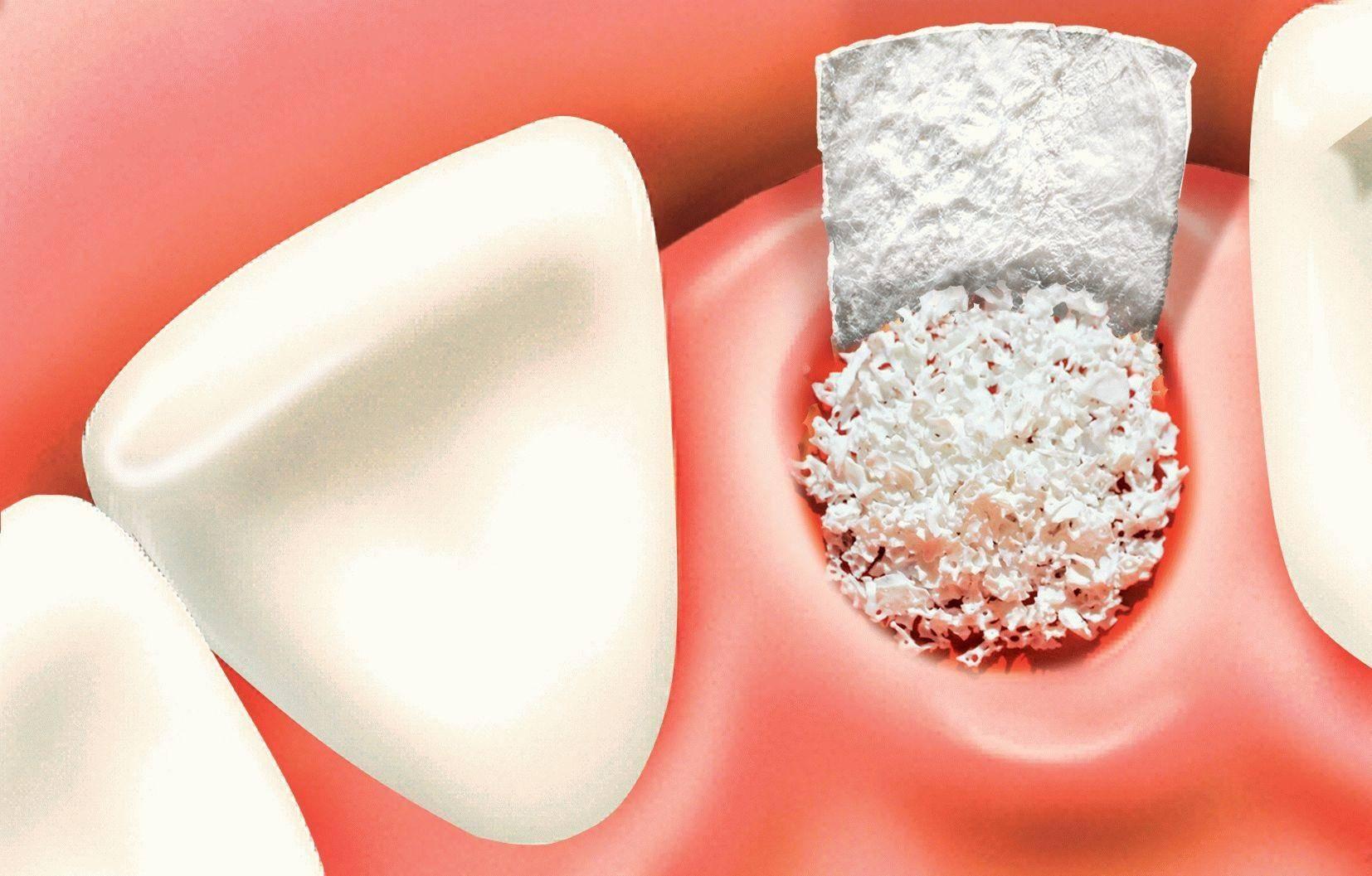Сколько дней заживает десна. после удаления зуба в лунку положили лекарство