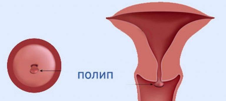 Влияние полипов шейки матки на беременность и роды