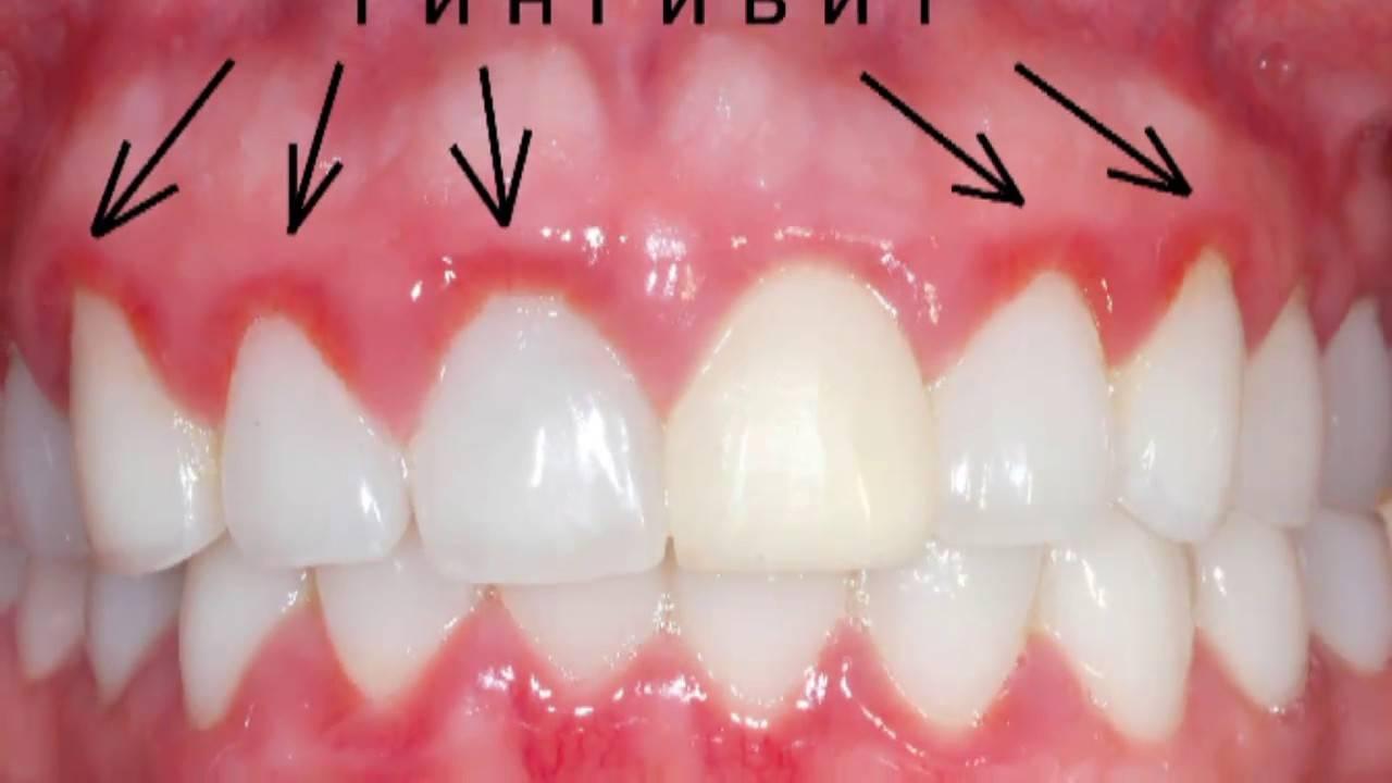 Почему зубы немеют что делать?