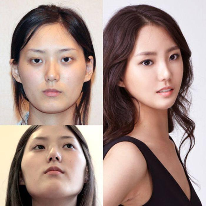 Можно ли изменить форму глаз хирургическим путем. операция по увеличению глаз: до и после. послеоперационный период и возможные осложнения после пластики разреза глаз